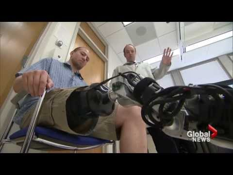 Mind-controlled prosthetic leg